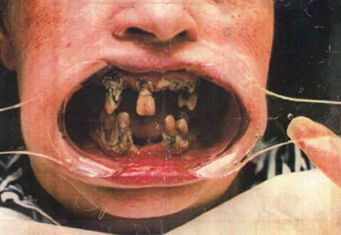 Morbid bbacteria in the mouth of an ILP member